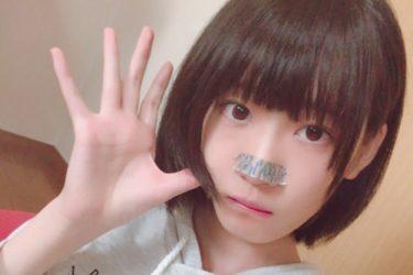 【ねこてん】鼻をテープで隠す理由とは?卒アルの写真が可愛い!本名やニコ生時代の活動も調査!